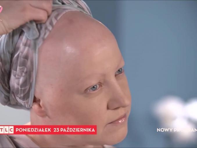 """Co mi dolega?"" - nowy program TLC Polska"